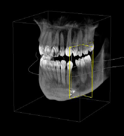 Image of a 3D radiographic scan of the jaw.