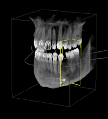 A 3D image created with Cone Beam technology.
